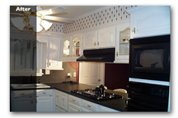 refacing-before&after